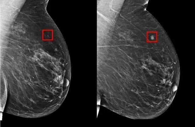 乳腺癌预测模型只有白人女性数据,MIT刚刚把它扩展到了所有族裔